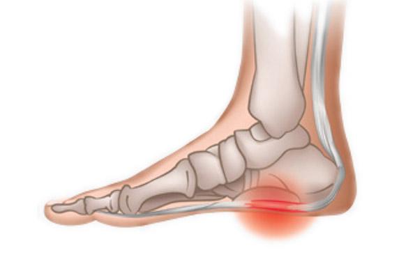 足底筋膜炎イメージ02